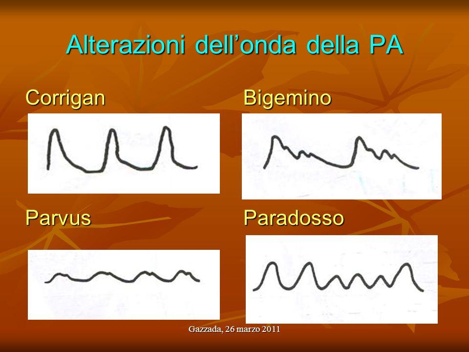 Alterazioni dell'onda della PA