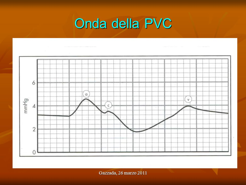 Onda della PVC Gazzada, 26 marzo 2011