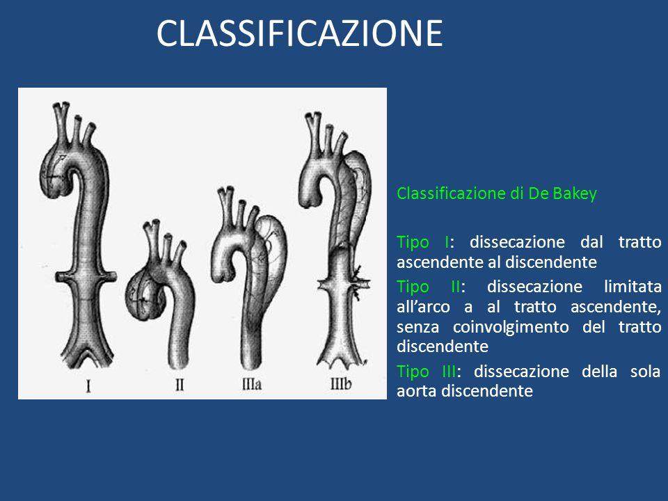 CLASSIFICAZIONE Classificazione di De Bakey