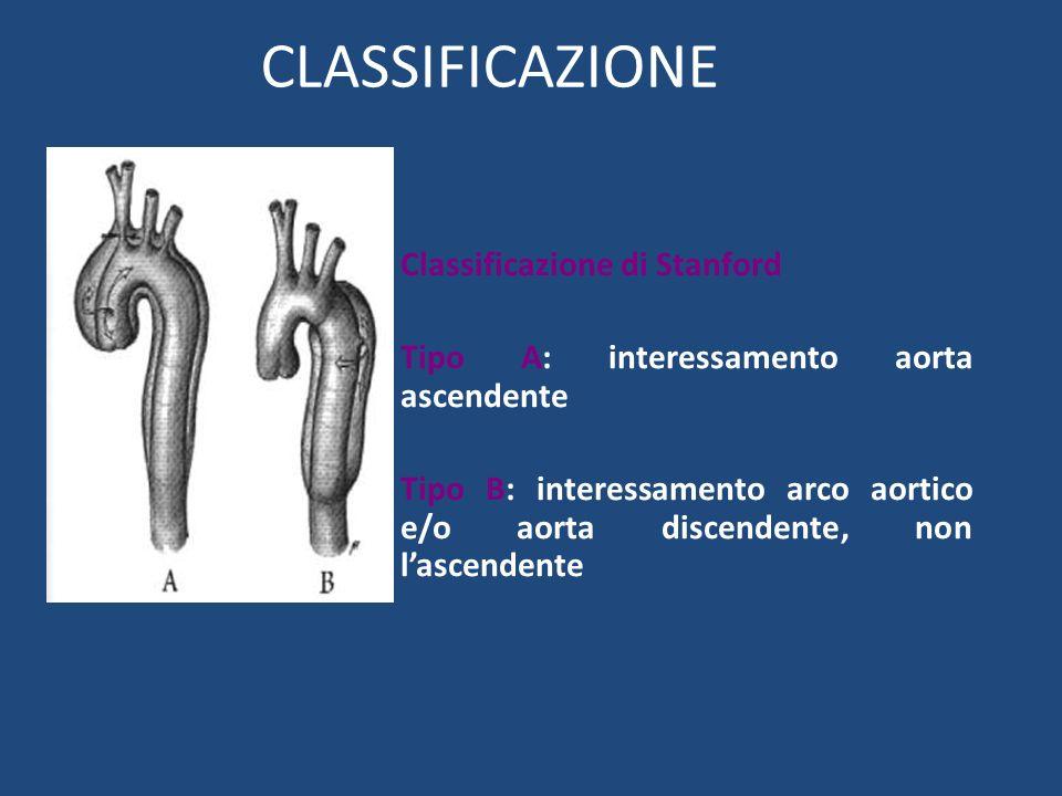 CLASSIFICAZIONE Classificazione di Stanford