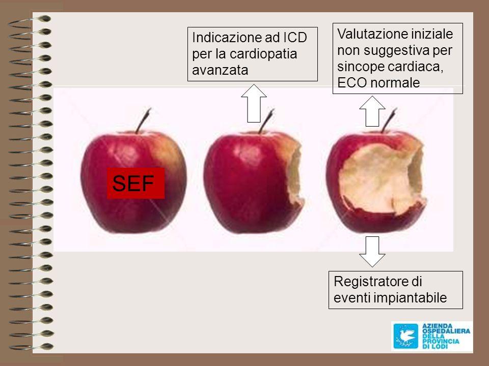 Valutazione iniziale non suggestiva per sincope cardiaca, ECO normale