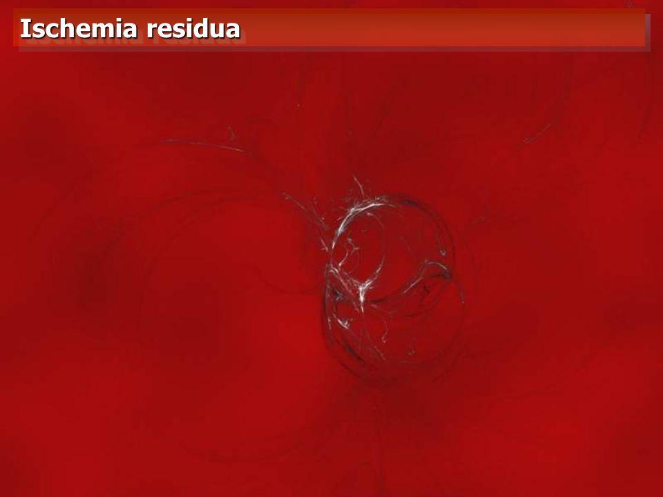 Ischemia residua VEDI FLE EXCEL SUL PC fisso