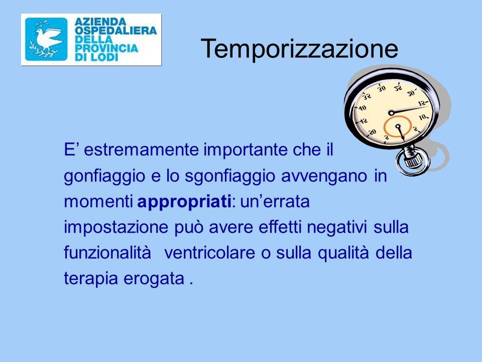 Temporizzazione