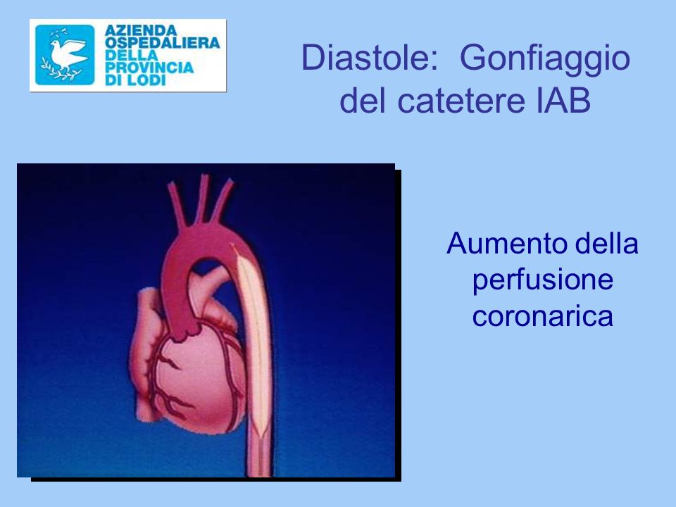 Diastole: Gonfiaggio del catetere IAB