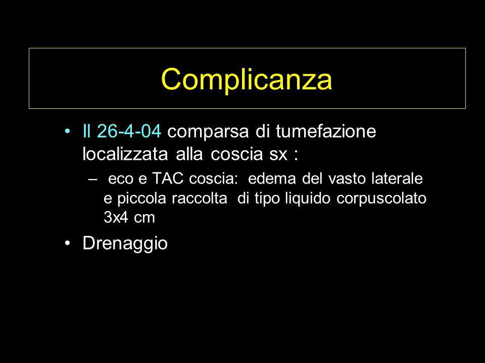 Complicanza Il 26-4-04 comparsa di tumefazione localizzata alla coscia sx :