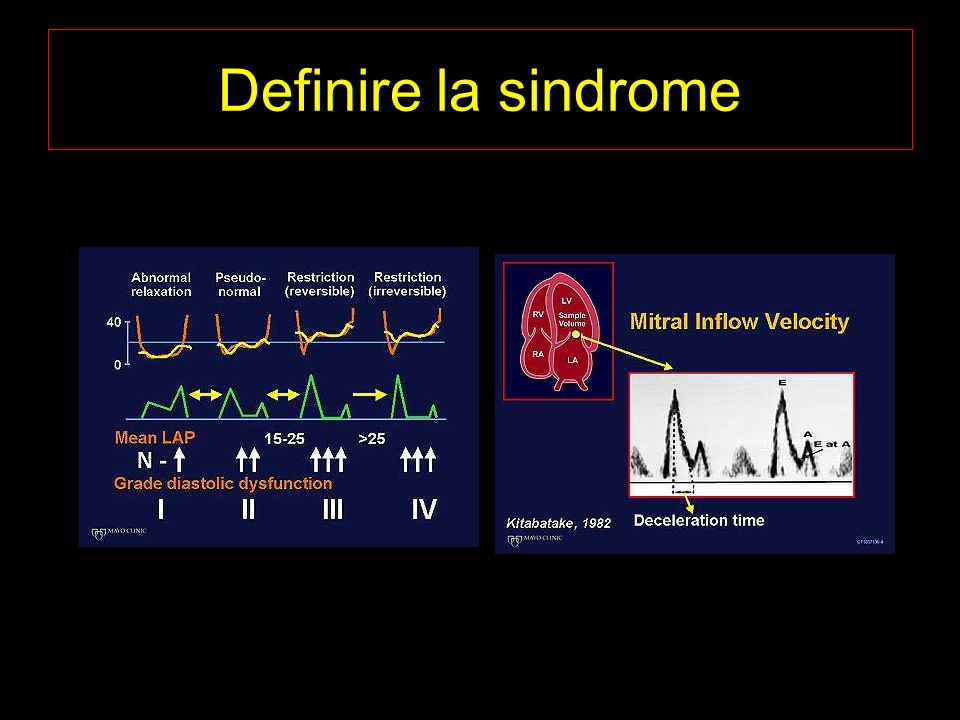 Definire la sindrome