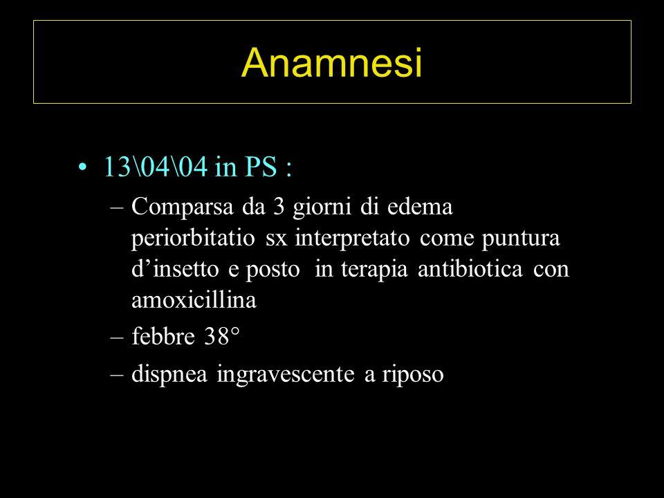 Anamnesi 13\04\04 in PS :