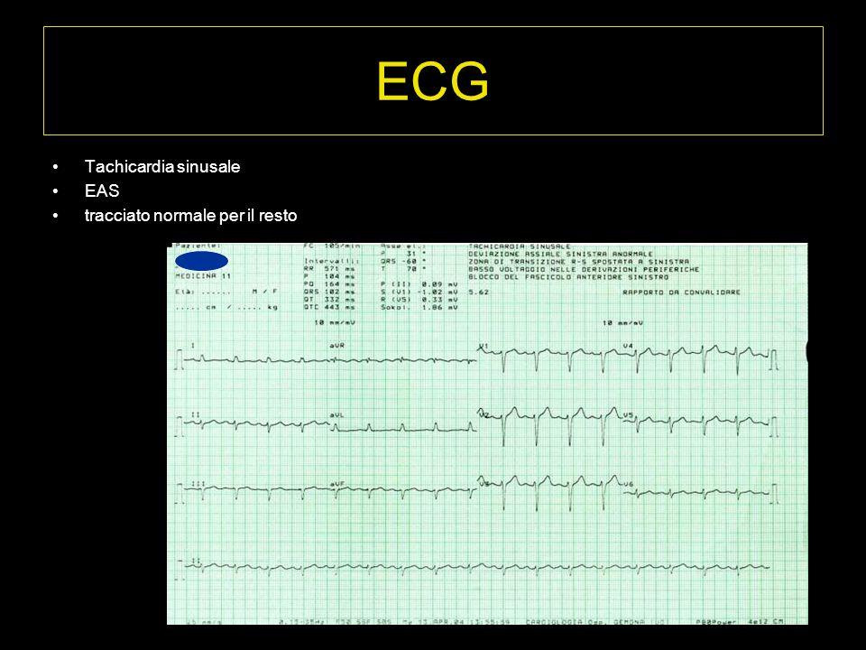 ECG Tachicardia sinusale EAS tracciato normale per il resto