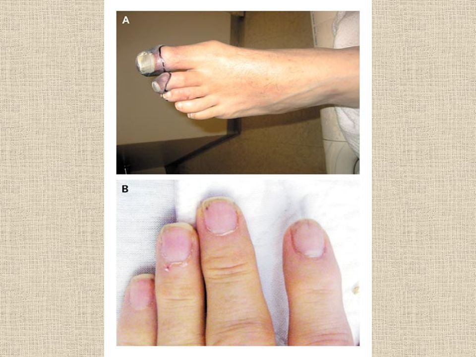 Figure 1. Manifestations of Disease in the Patient s Toes and Fingertips.