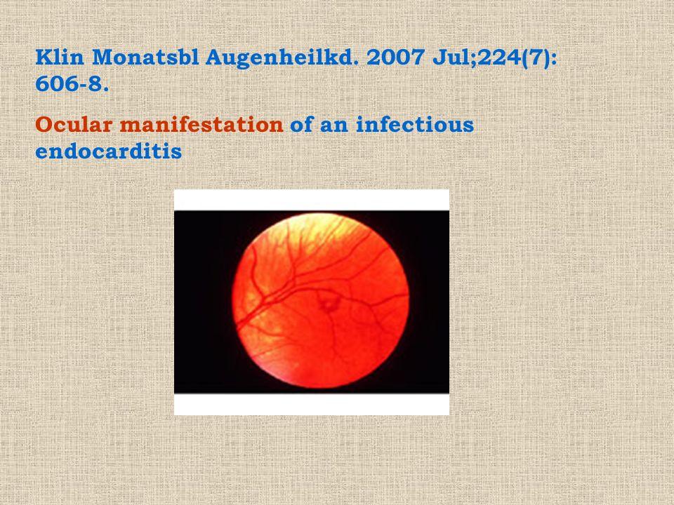 Klin Monatsbl Augenheilkd. 2007 Jul;224(7): 606-8.
