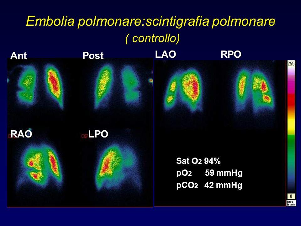 Embolia polmonare:scintigrafia polmonare ( controllo)