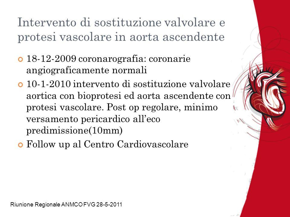 Intervento di sostituzione valvolare e protesi vascolare in aorta ascendente