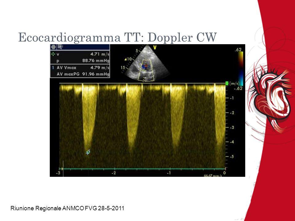 Ecocardiogramma TT: Doppler CW