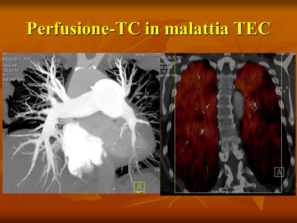 Perfusione-TC in malattia TEC