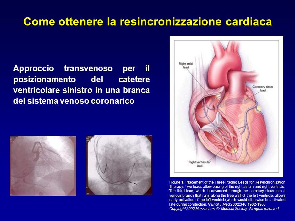 Come ottenere la resincronizzazione cardiaca