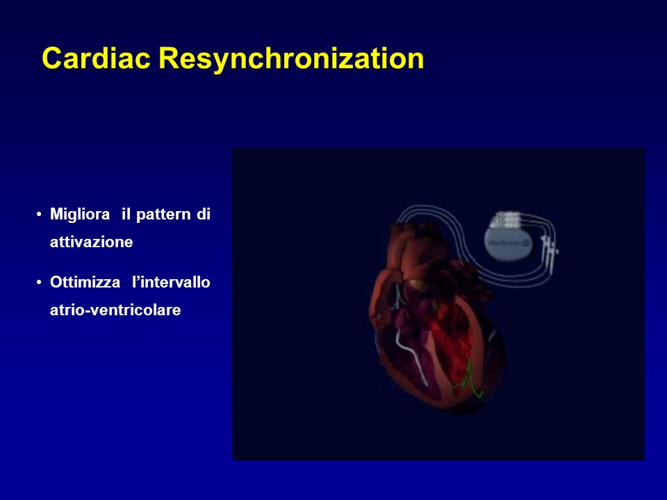 Cardiac Resynchronization