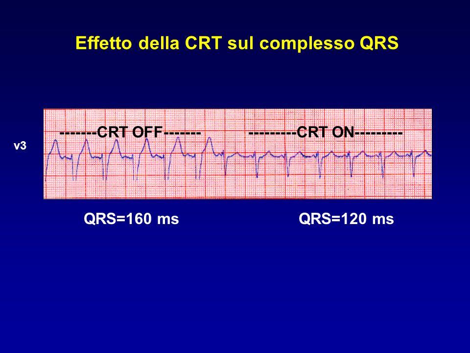 Effetto della CRT sul complesso QRS