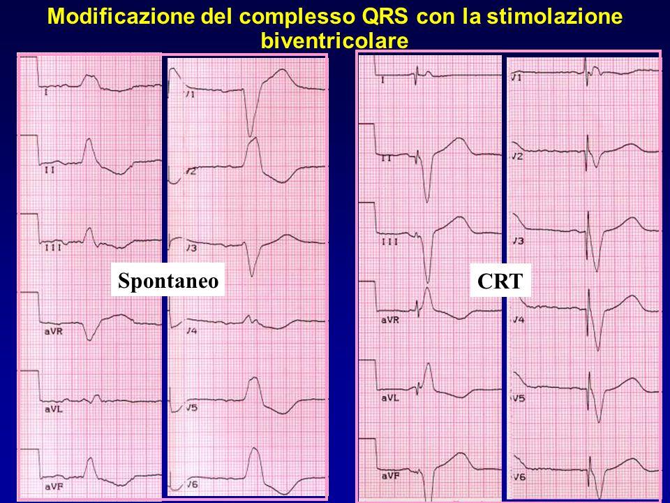 Modificazione del complesso QRS con la stimolazione biventricolare