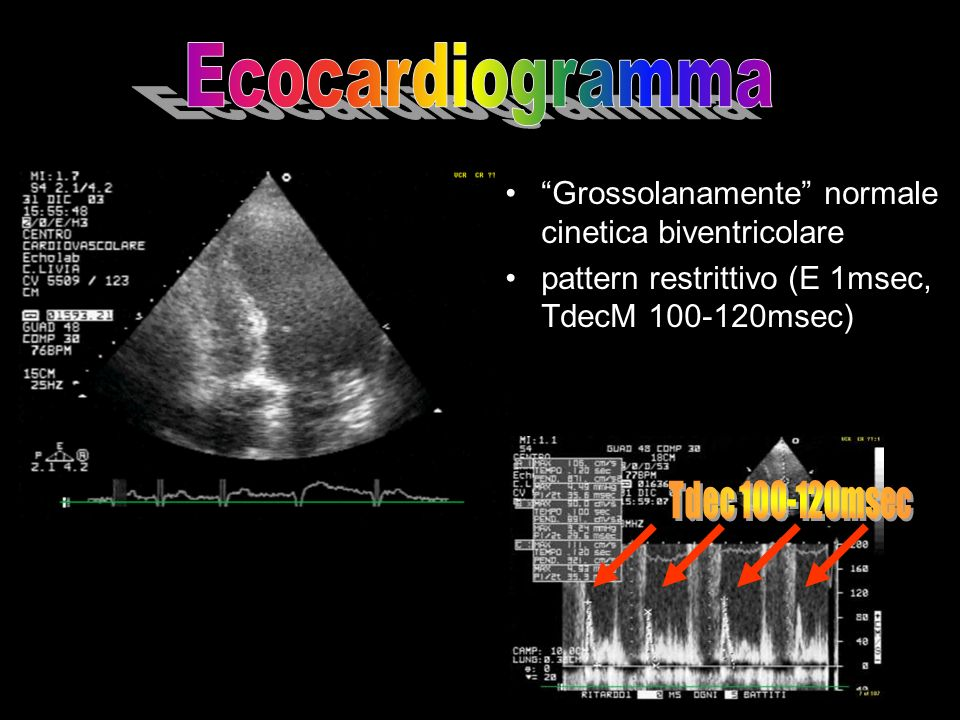 Ecocardiogramma Grossolanamente normale cinetica biventricolare