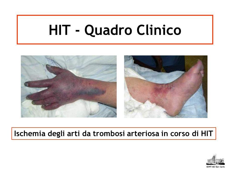 HIT - Quadro Clinico Ischemia degli arti da trombosi arteriosa in corso di HIT SIMT-AO San Carlo