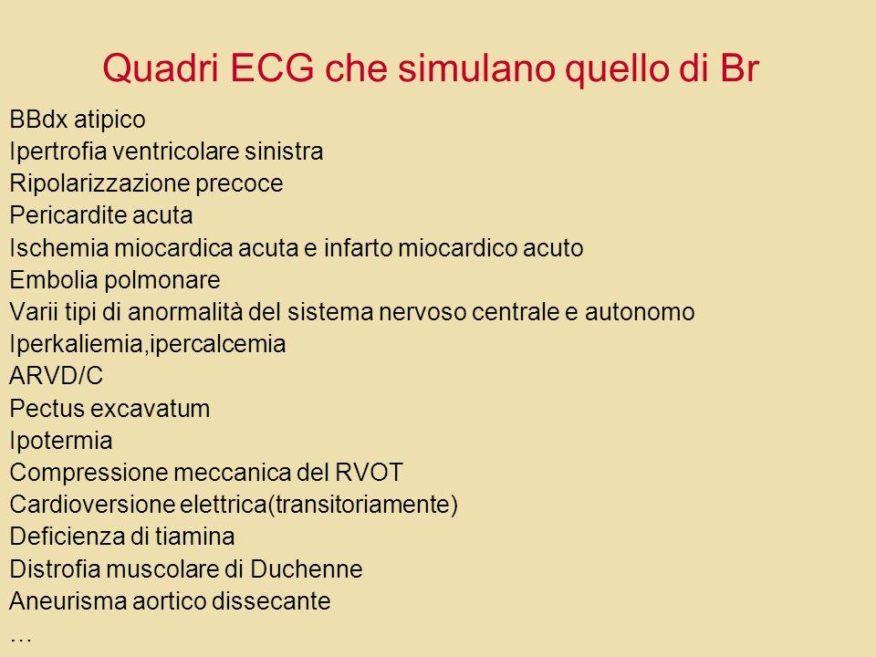 Quadri ECG che simulano quello di Br