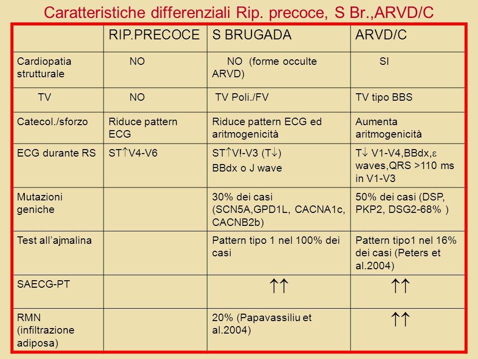 Caratteristiche differenziali Rip. precoce, S Br.,ARVD/C