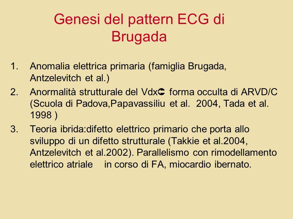 Genesi del pattern ECG di Brugada