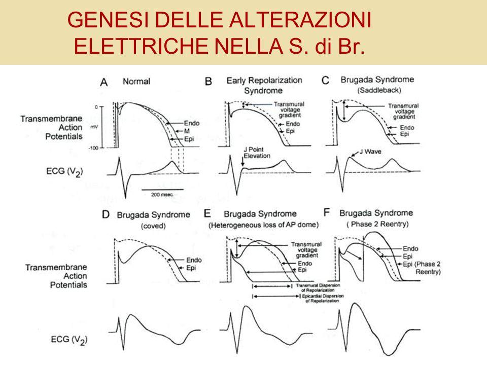 GENESI DELLE ALTERAZIONI ELETTRICHE NELLA S. di Br.