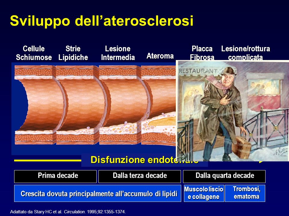 Sviluppo dell'aterosclerosi