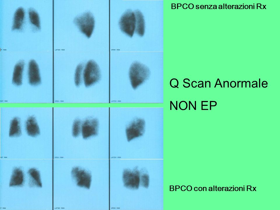 Q Scan Anormale NON EP BPCO senza alterazioni Rx