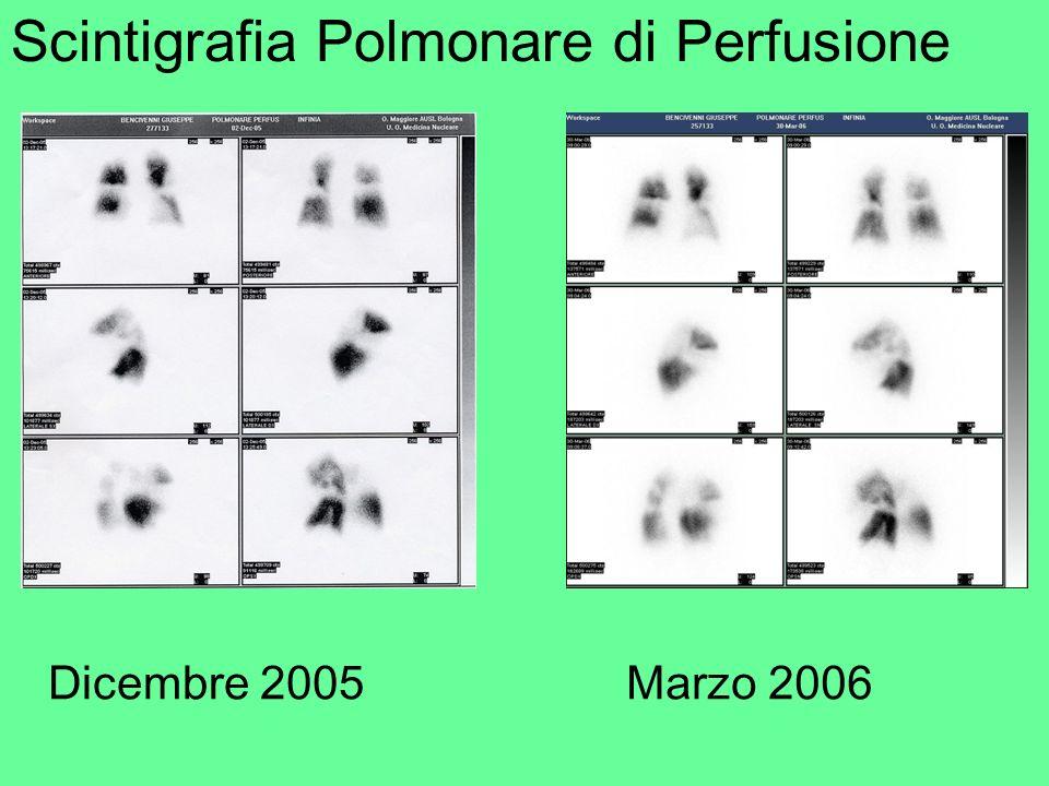 Scintigrafia Polmonare di Perfusione