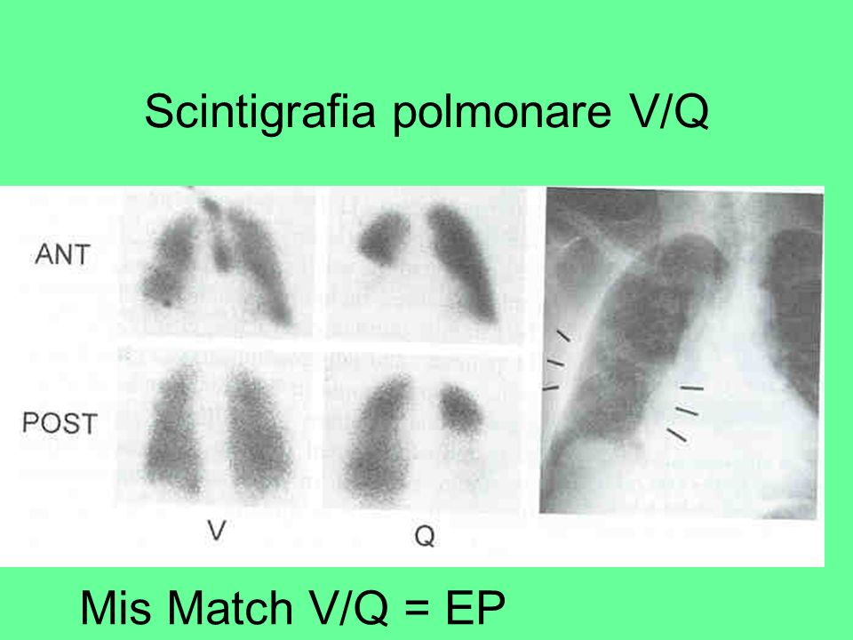 Scintigrafia polmonare V/Q