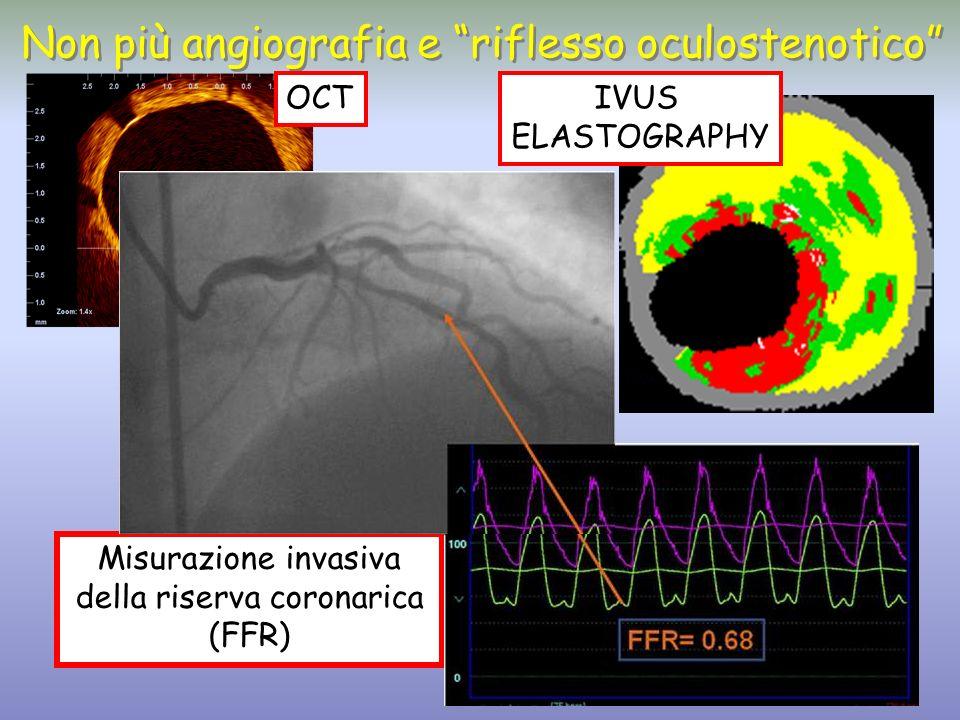 Misurazione invasiva della riserva coronarica (FFR)