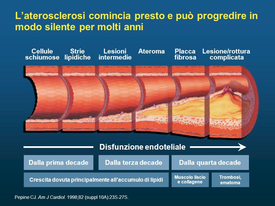 L'aterosclerosi comincia presto e può progredire in modo silente per molti anni