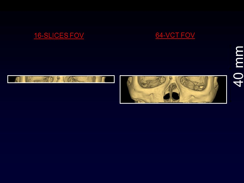 16-SLICES FOV 64-VCT FOV 40 mm 40mm /Rotation