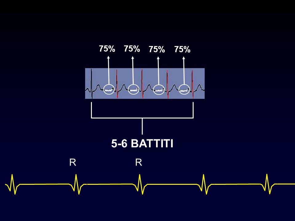 5-6 BATTITI R R 75% 75% 75% 75% 124 mm coverage in only 5.3 sec