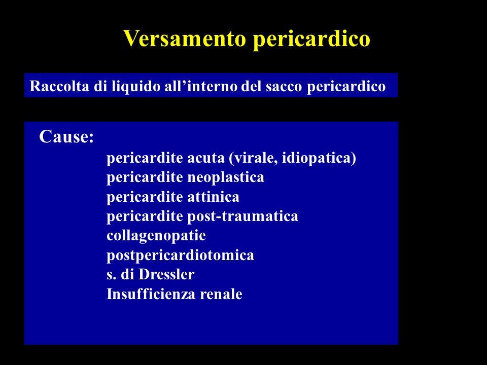 Versamento pericardico
