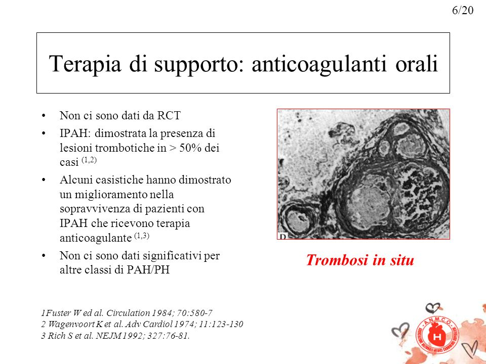 Terapia di supporto: anticoagulanti orali