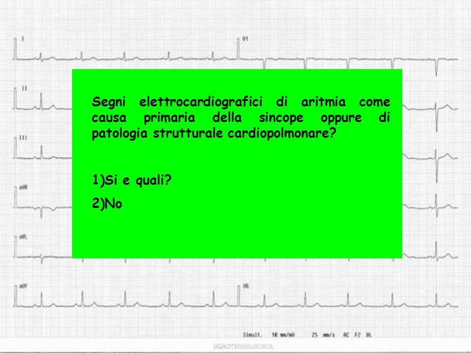 Segni elettrocardiografici di aritmia come causa primaria della sincope oppure di patologia strutturale cardiopolmonare