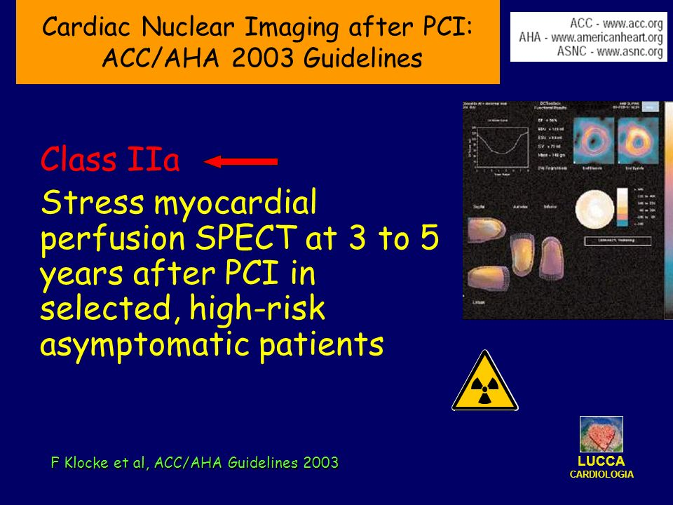 Cardiac Nuclear Imaging after PCI: ACC/AHA 2003 Guidelines