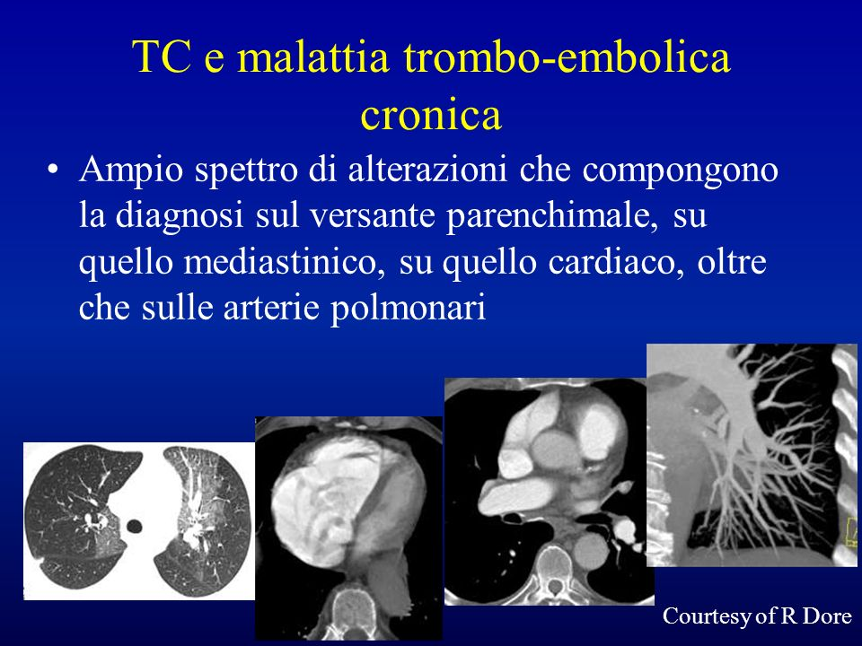TC e malattia trombo-embolica cronica