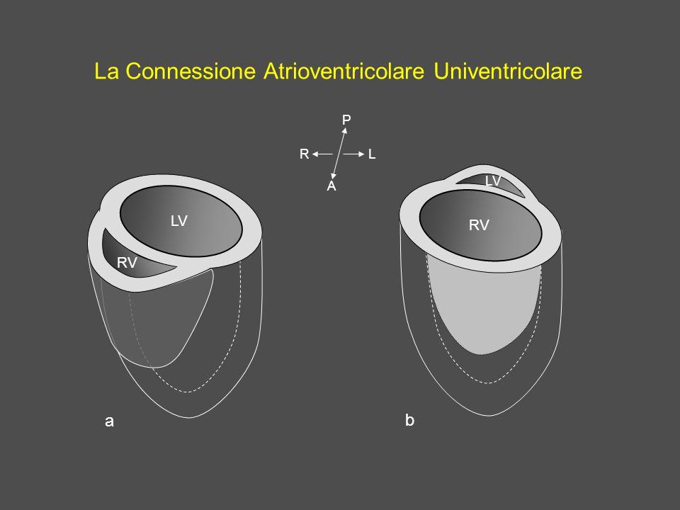 La Connessione Atrioventricolare Univentricolare