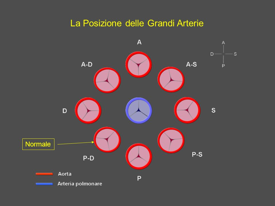 La Posizione delle Grandi Arterie