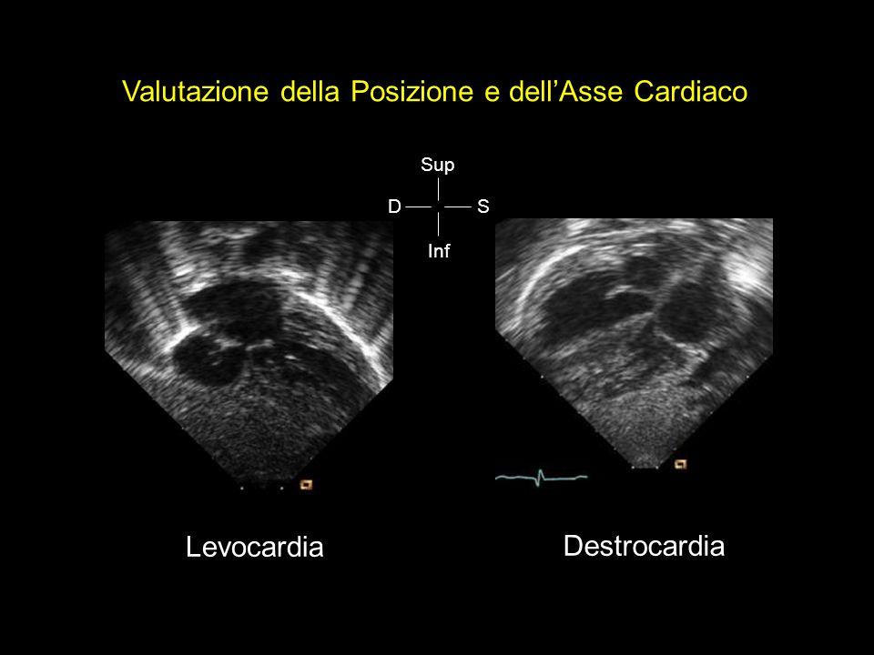 Valutazione della Posizione e dell'Asse Cardiaco