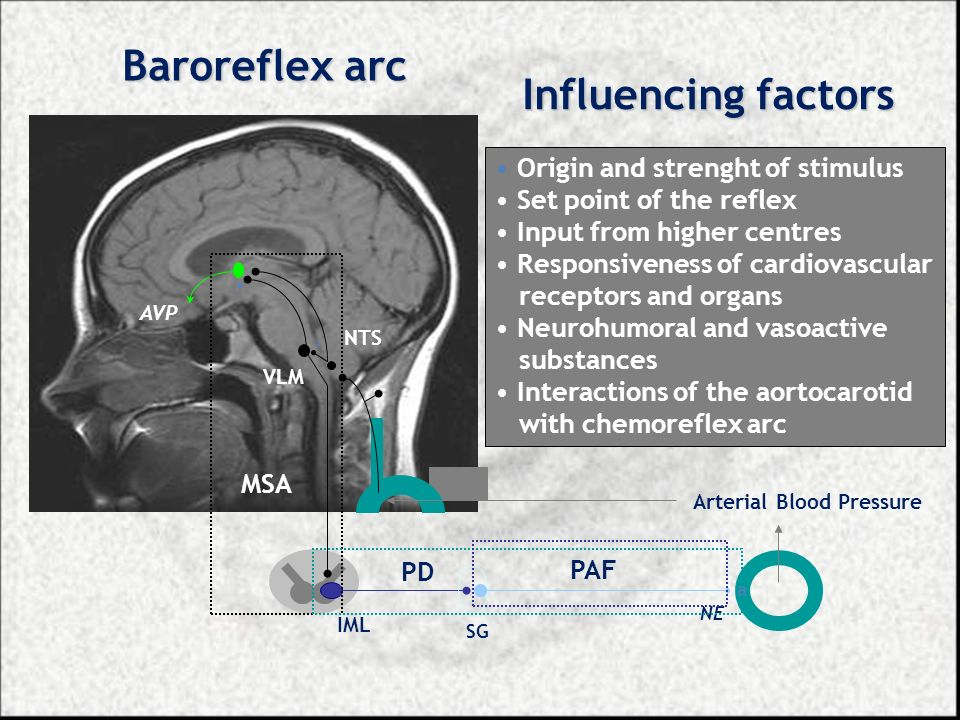 Baroreflex arc Influencing factors Origin and strenght of stimulus