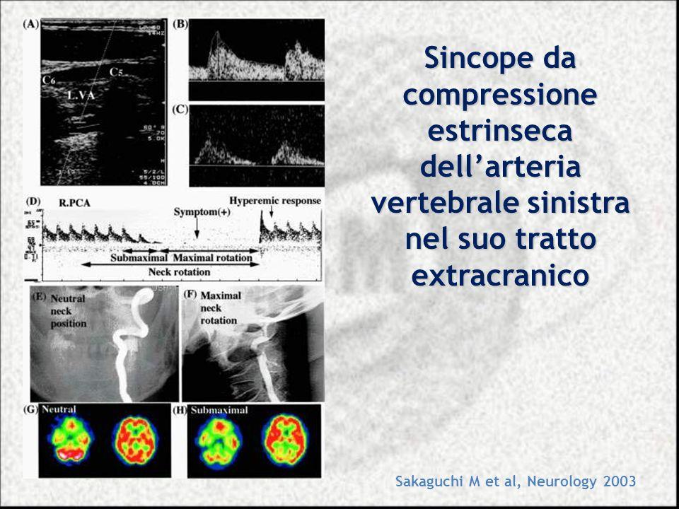 Sincope da compressione estrinseca dell'arteria vertebrale sinistra nel suo tratto extracranico