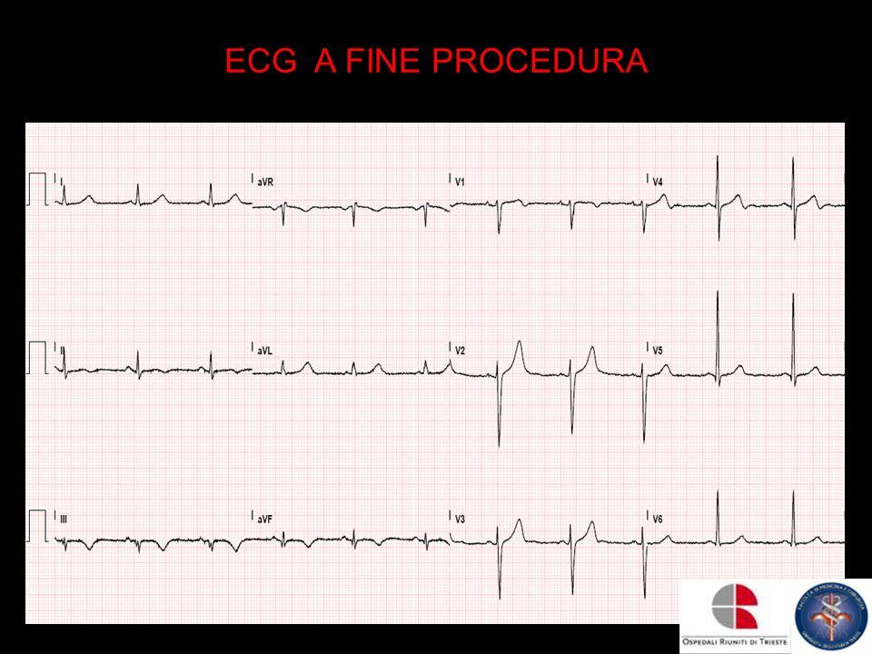 ECG A FINE PROCEDURA