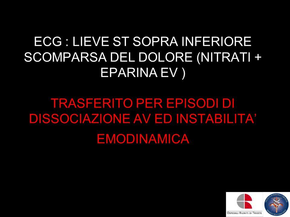ECG : LIEVE ST SOPRA INFERIORE SCOMPARSA DEL DOLORE (NITRATI + EPARINA EV ) TRASFERITO PER EPISODI DI DISSOCIAZIONE AV ED INSTABILITA' EMODINAMICA