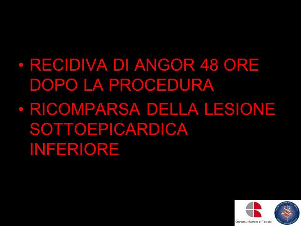 RECIDIVA DI ANGOR 48 ORE DOPO LA PROCEDURA