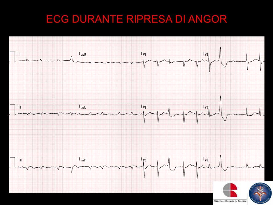 ECG DURANTE RIPRESA DI ANGOR